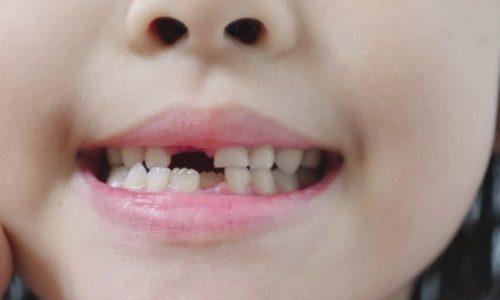 乳歯がグラグラして痛い時は抜いてあげるべき?恐怖体験談